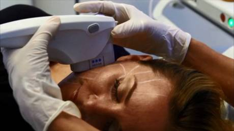 Procedure Up Close - Ultherapy Skin Lifting Treatment - WEB
